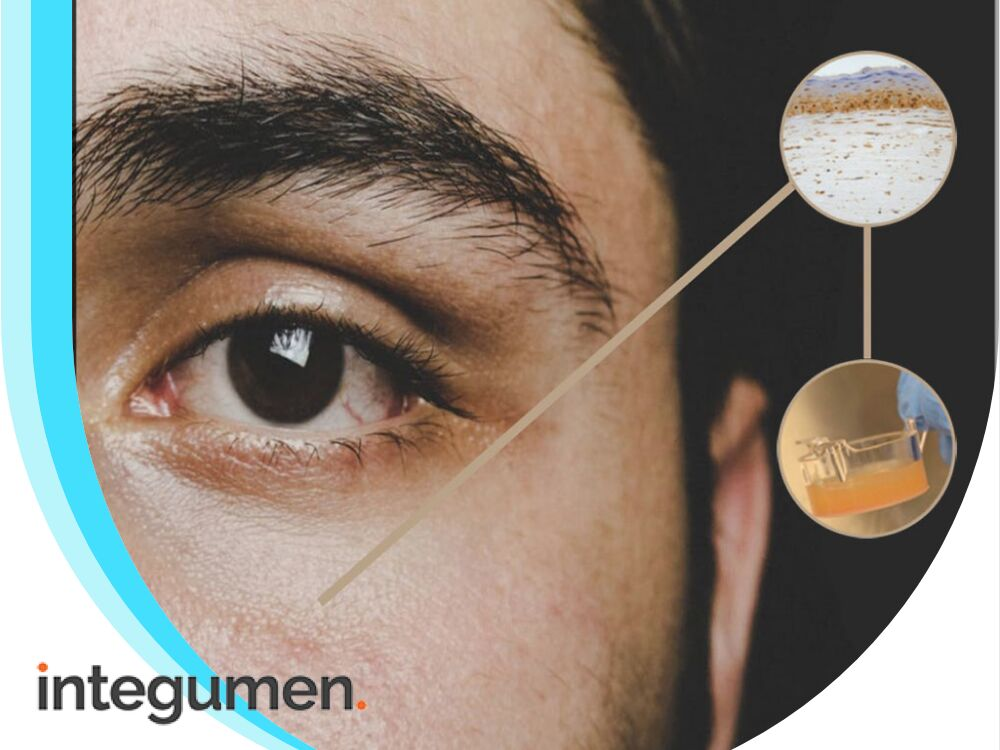 Integumen launches dandruff test using flagship artificial skin product (SKIN)